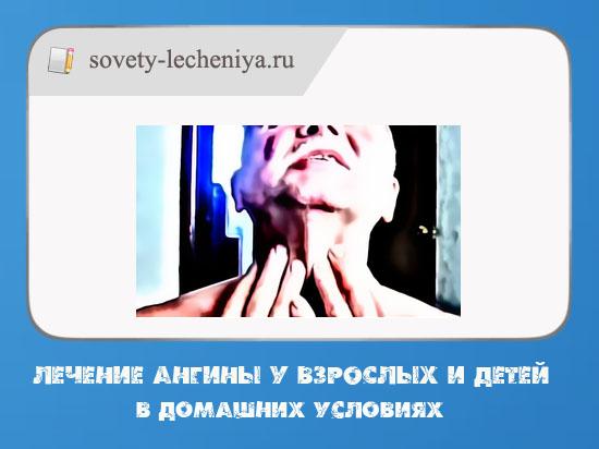 lechenie anginy u vzroslyx i detej v domashnix usloviyax