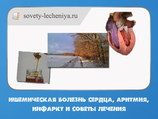 ishemicheskaya-bolezn-serdca-aritmiya-infarkt-i-sovety-lecheniya