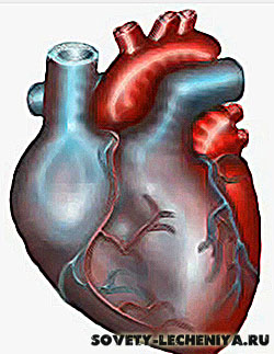 infarkt-miokarda