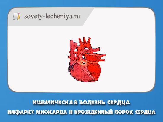 ishemicheskaya-bolezn-serdca-infarkt-miokarda-i-vrozhdennyj-porok-serdca