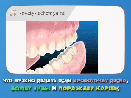 chto-nuzhno-delat-esli-krovotochat-desna-bolyat-zuby-i-porazhaet-karies
