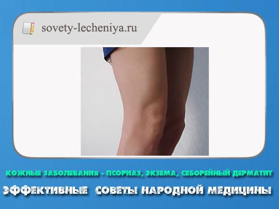 kozhnye-zabolevaniya-psoriaz-ekzema-seborejnyj-dermatit-effektivnye-sovety-narodnoj-mediciny