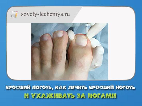 vrosshij-nogot-kak-lechit-vrosshij-nogot-i-uxazhivat-za-nogami