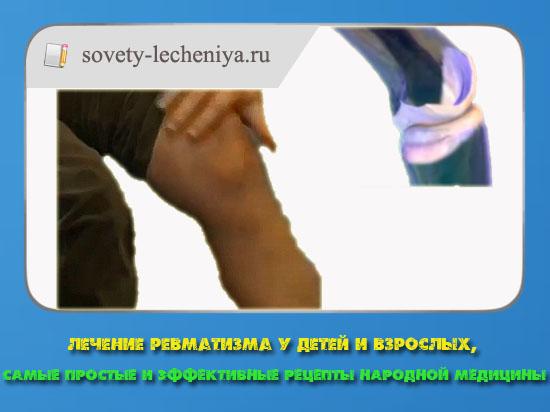 lechenie-revmatizma-u-detej-i-vzroslyx-samye-prostye-i-effektivnye-recepty-narodnoj-mediciny