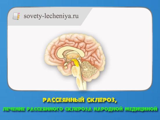 rasseyannyj-skleroz-lechenie-rasseyannogo-skleroza-narodnoj-medicinoj