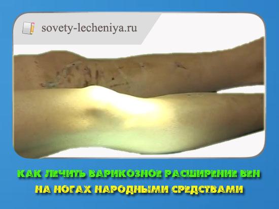 Истории болезни сосудистая хирургия
