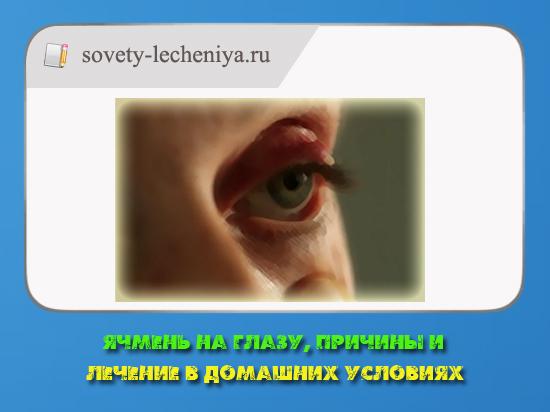 Ячмень на глазу, причины и лечение в домашних условиях