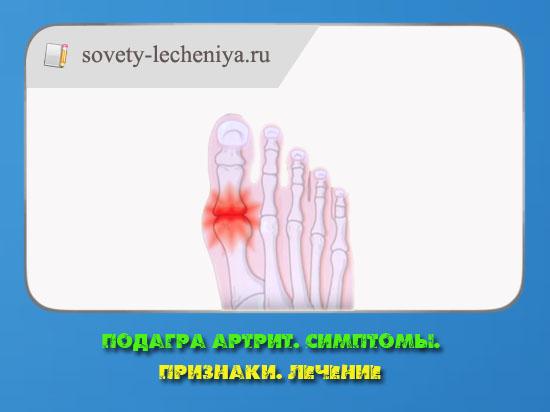 Подагра артрит - Симптомы - Признаки - Лечение