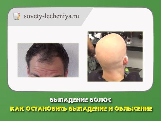 как остановить выпадение волос