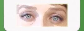 01-glaukoma-glaz