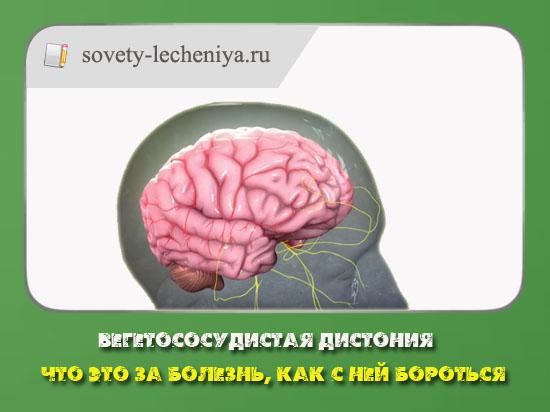 01-vegetososudistaya-distoniya